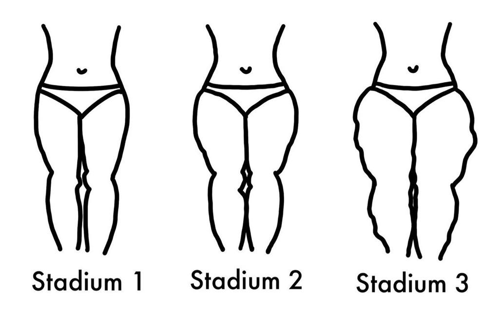Die drei Stadien eines Lipödems (Illustration: Nina Rodermann)